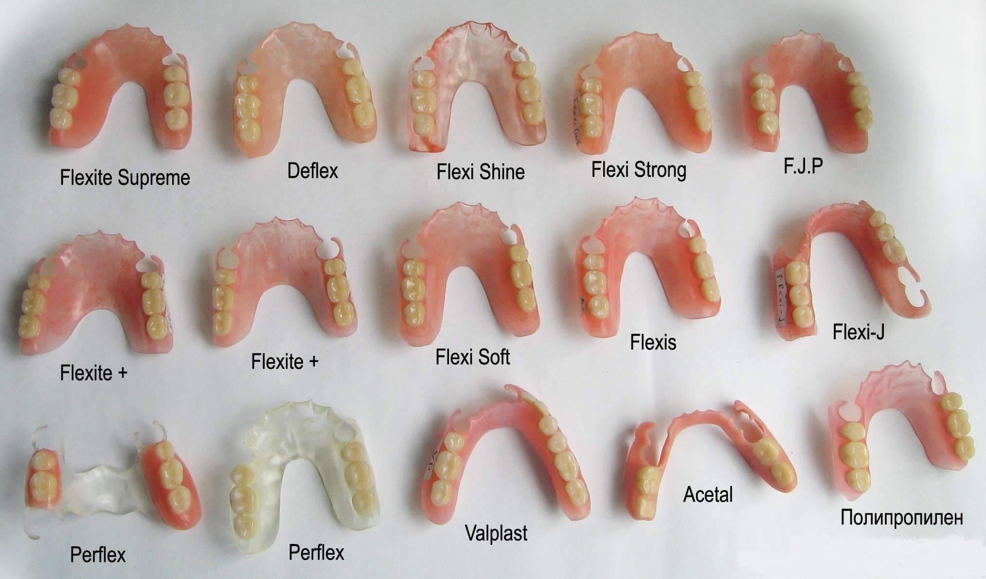 Протезирование молочных зубов: причины выполнения процедуры и варианты конструкций