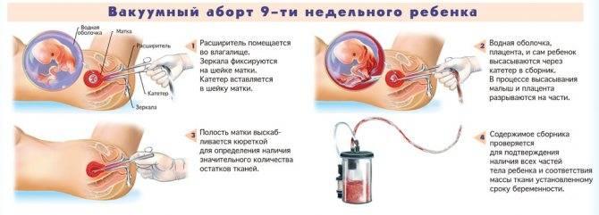 Виды выделений после вакуумного прерывания беременности и сколько дней они идут