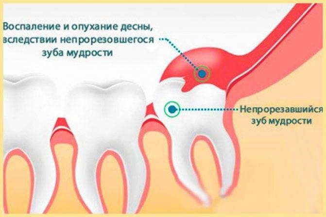Сильно болит зуб и опухла щека: в чём причина и как справиться с проблемой?