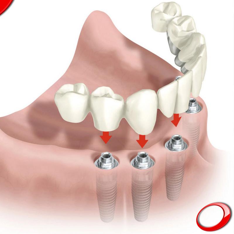 Как происходит протезирование при отсутствии зубов верхней челюсти?