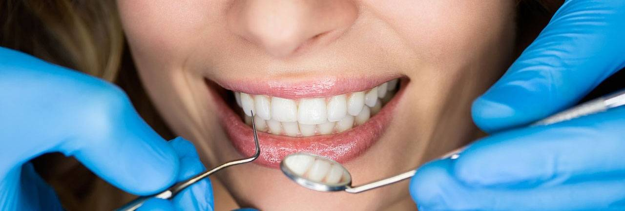 Преграды на пути к ослепительной улыбке: неприятные последствия имплантации зубов