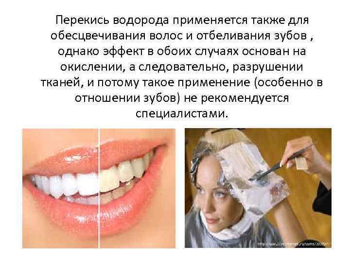 фото отзывы о перекиси водорода зубы матерные запоминающиеся поздравления