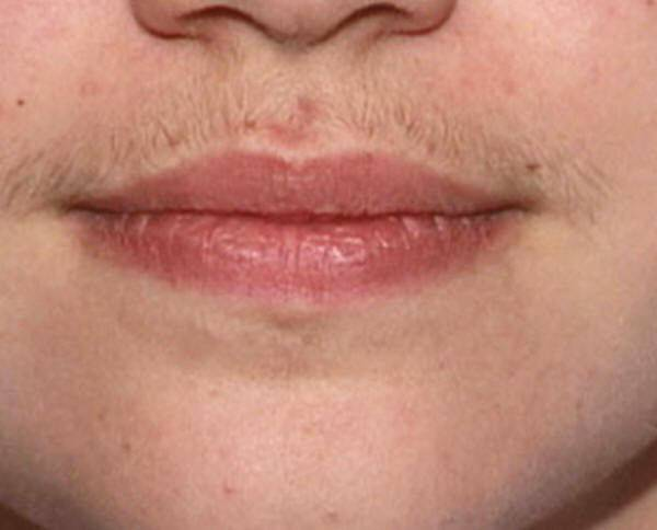 Как проводится лазерная эпиляция губы и есть ли противопоказания?