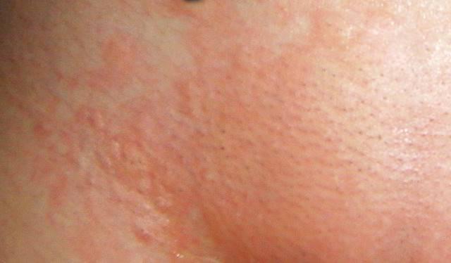 Насколько хватает лазерной эпиляции и сколько сеансов нужно для полного удаления волос