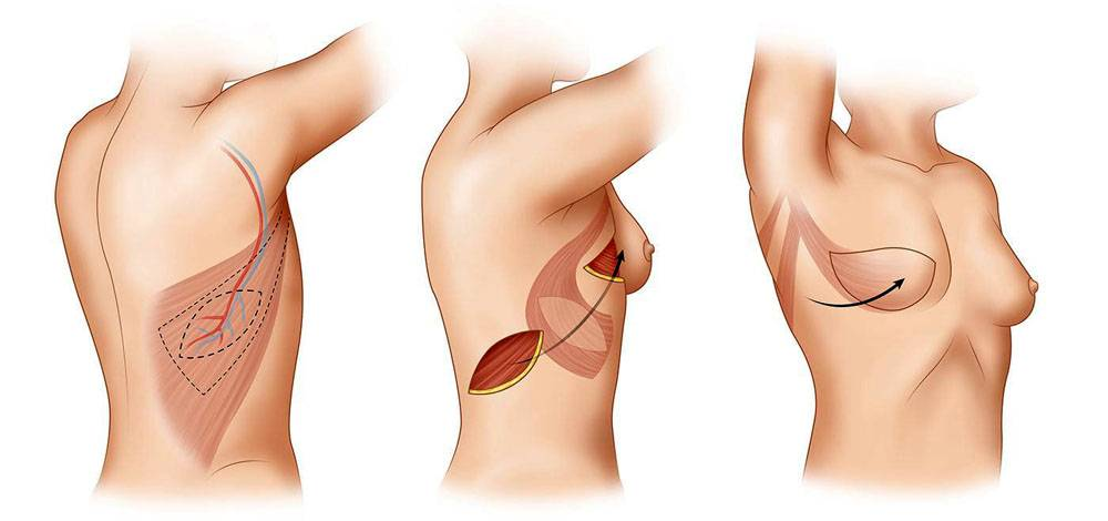 Процесс восстановления груди после мастэктомии, реабилитация после операции