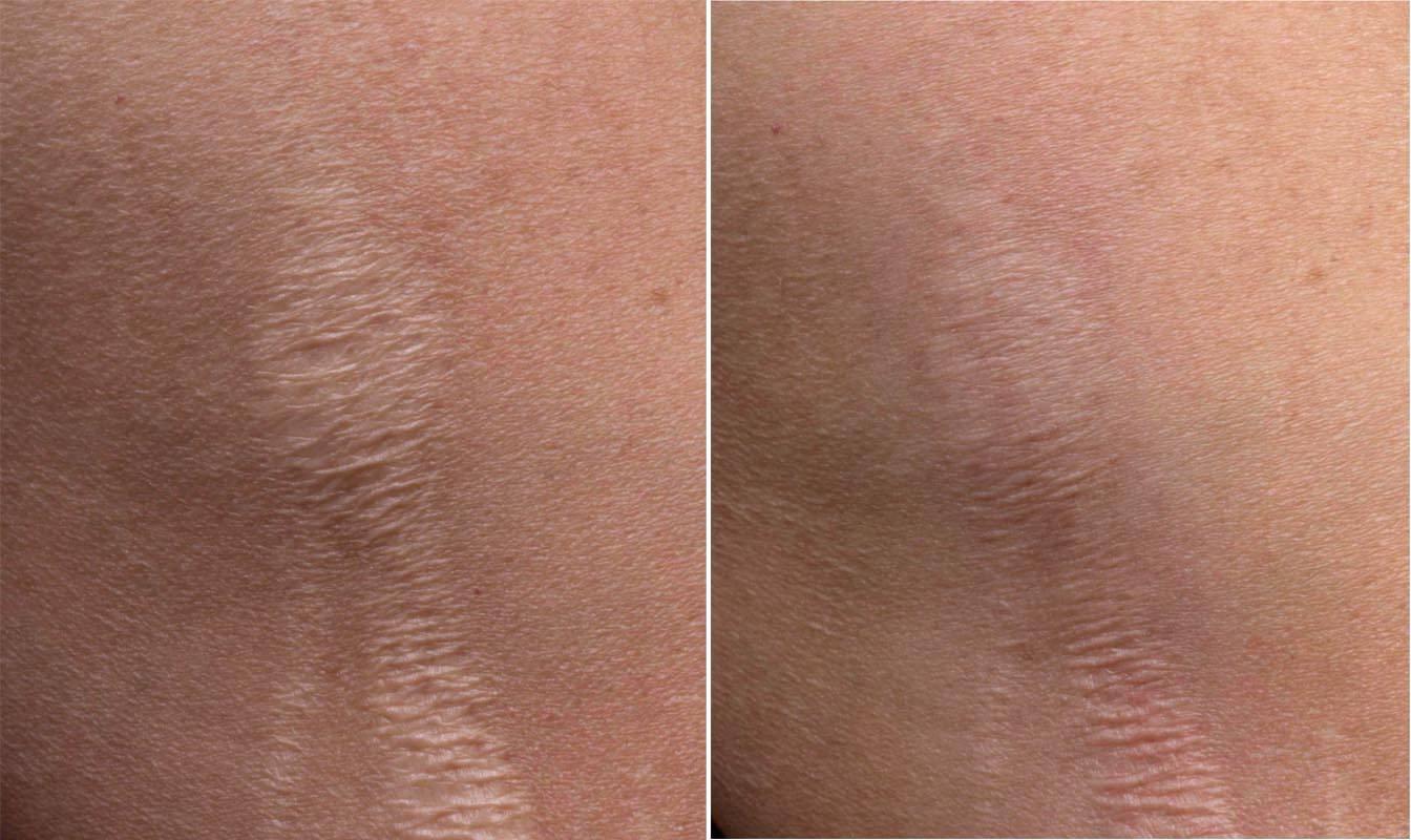 Лазерная шлифовка шрамов на коже. особенности, результаты, фото до и после