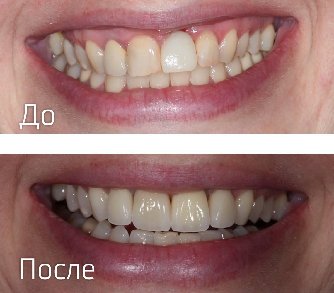 Создание красивой улыбки: как ставят виниры на зубы