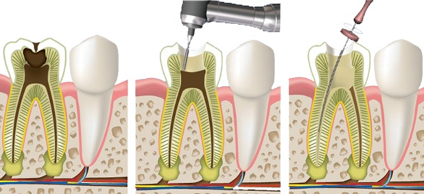 Самые эффективные советы, как успокоить сильную зубную боль в домашних условиях