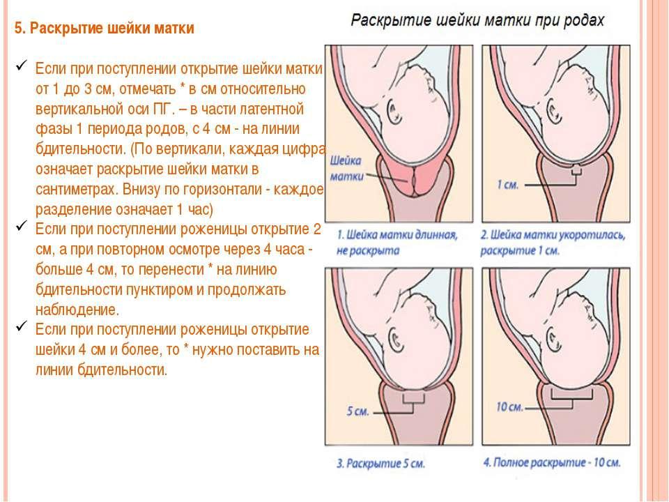 На сколько пальцев открывается матка при родах в норме?