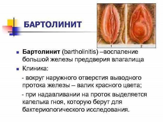 Бартолинит у женщин: особенности, симптомы и надежное лечение