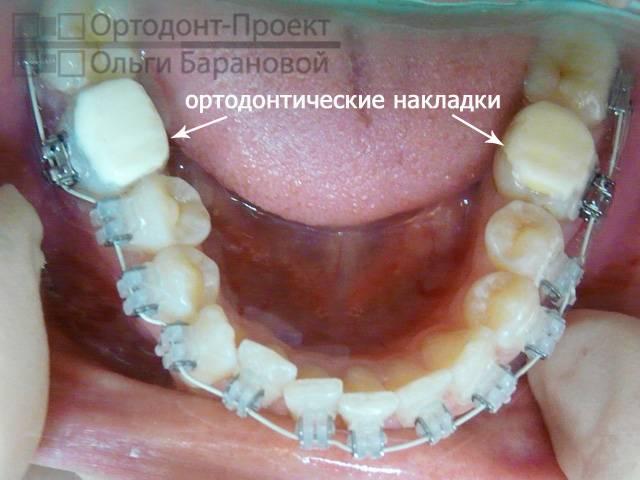 Сколько необходимо носить зубные брекеты, чтобы выровнять зубы взрослому человеку?