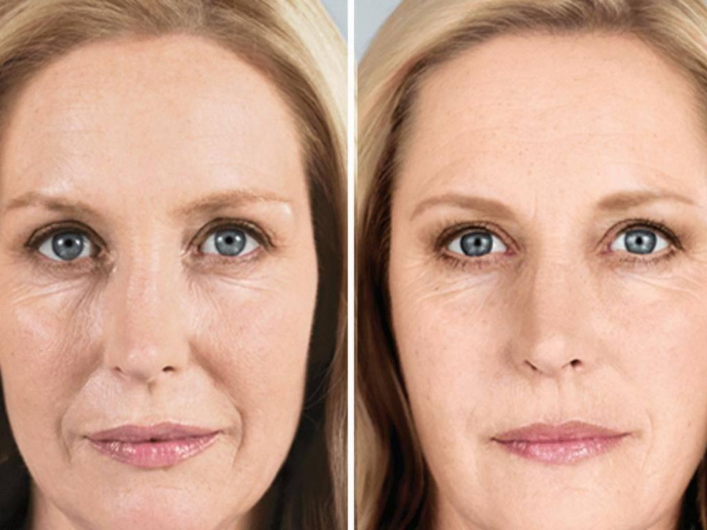 Гиалуаль (hyalual) преображает внешность
