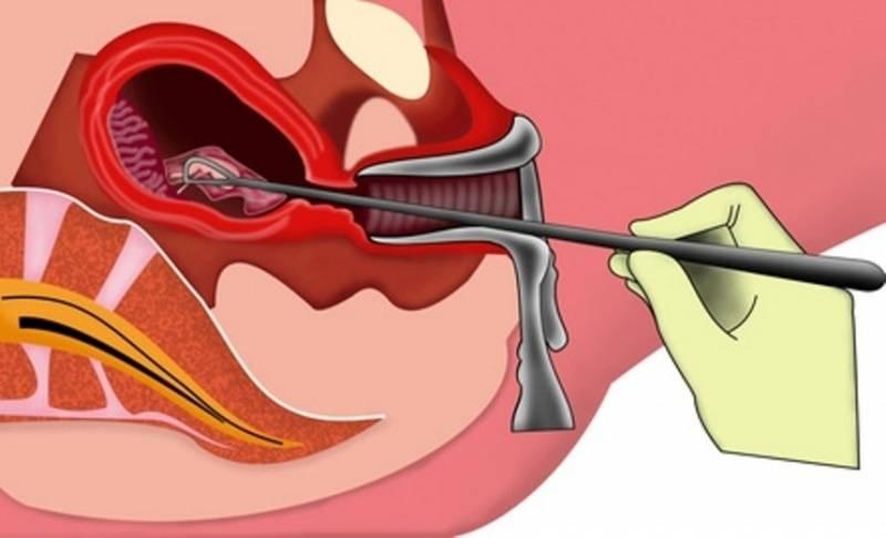 Удаление полипа эндометрия: как проводиться операция, подготовка к ней и последствия