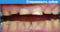 Причины ослабленной эмали зубов