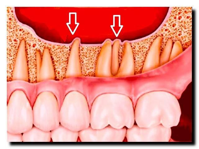 10 частых причин, из-за которых может болеть зуб