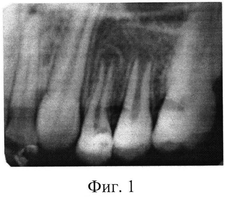 Методы лечения периодонтита молочных зубов с несформированными корнями