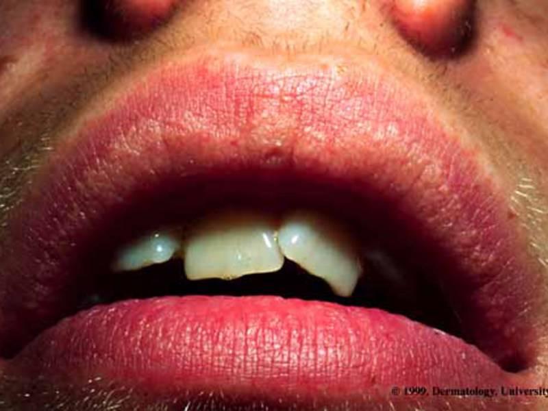 Что означает наличие черных точек в полости рта и на внутренней стороне щеки?