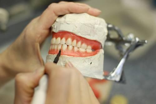 Чем стоматолог-ортопед отличается от ортодонта? профессия ортодонт