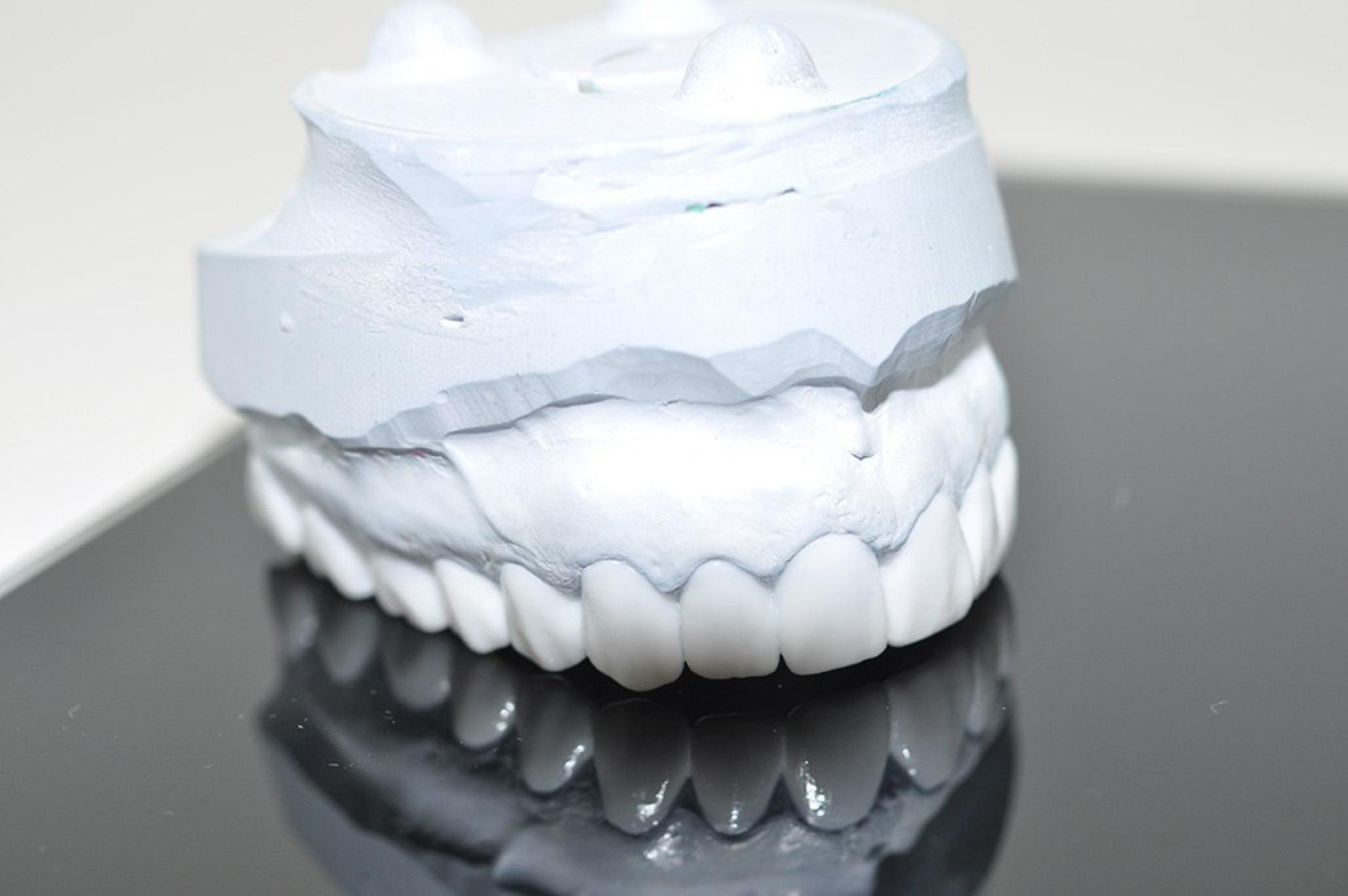 Моделирование зубов – революционный прорыв в стоматологии