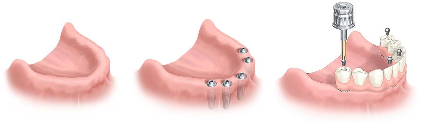 Мини-импланты для протезирования зубов