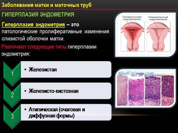 Гипоплазия матки: ранние признаки, степени, диагностика и лечение