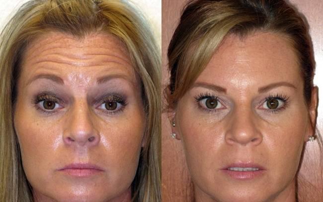 Как действует ботокс для лица – отзывы с фото до и после и какие возможны отрицательные последствия