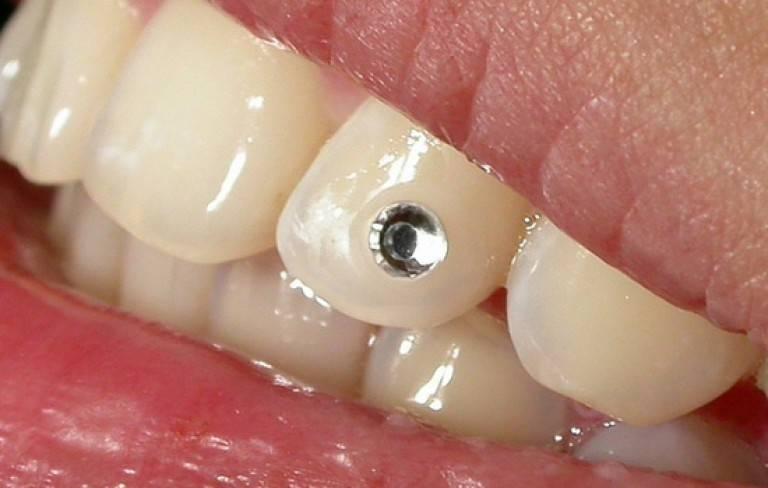 Украшения на зубы: какими они бывают, обзор цен