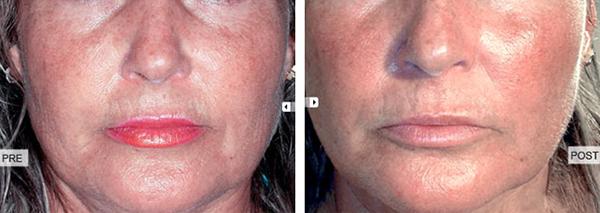 Аллергия на гиалуроновую кислоту фото