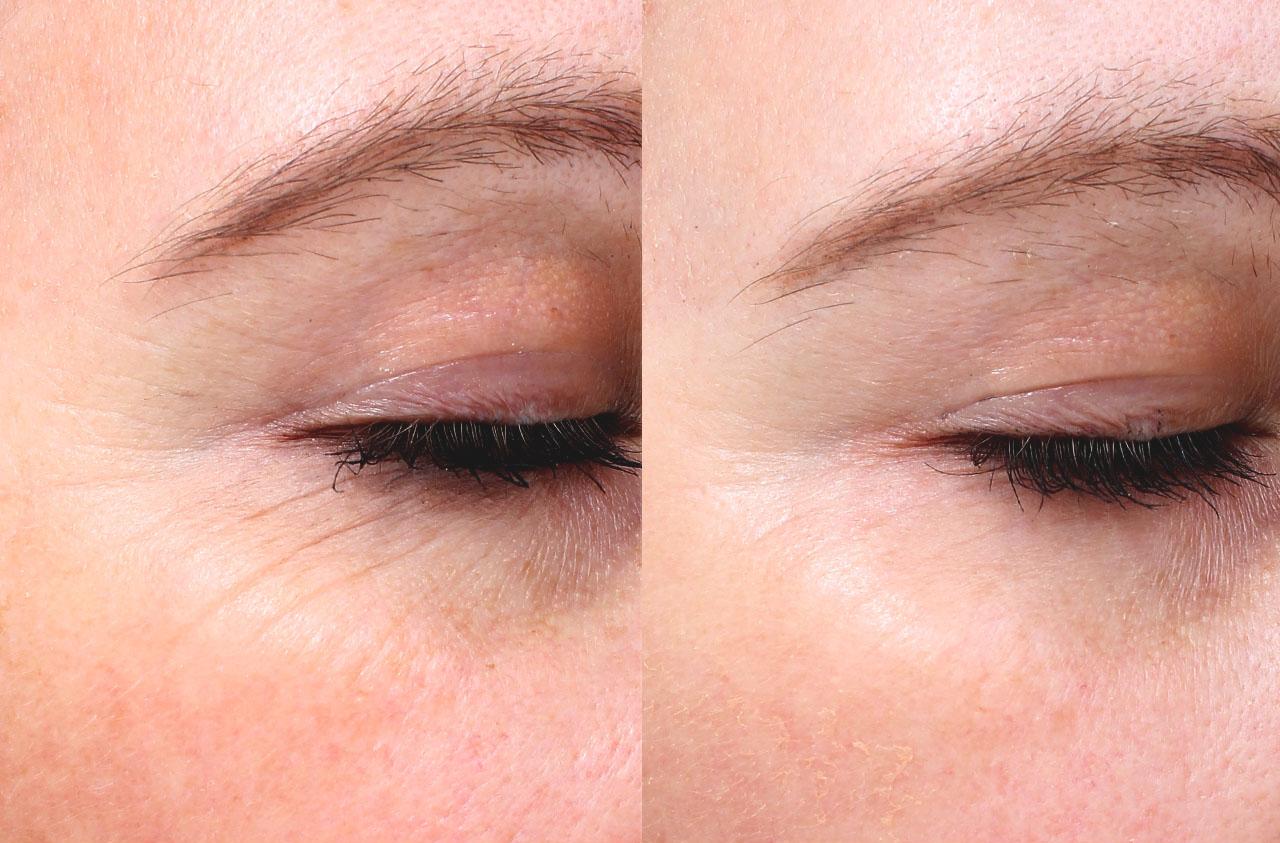 Морщины вокруг глаз: действенные способы избавиться от гусиных лапок