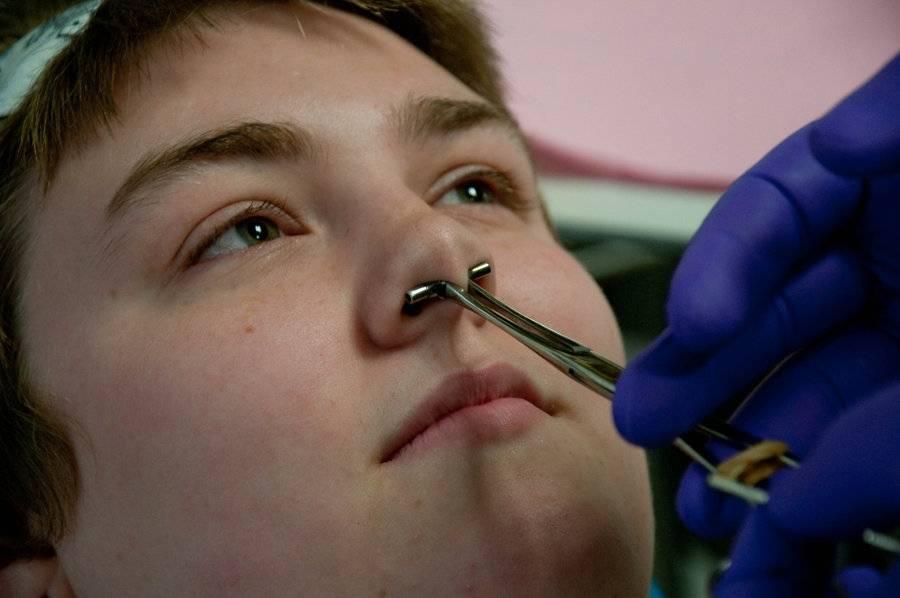 Как быстро зарастает пирсинг носа и остается ли дырка от прокола