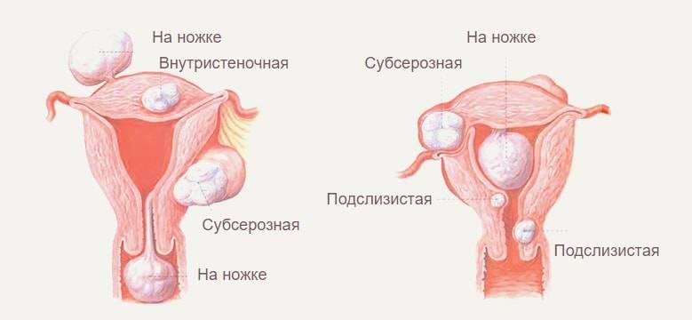 Многоузловая миома матки: причины, симптомы и признаки, лечение многоузловой миомы матки в москве