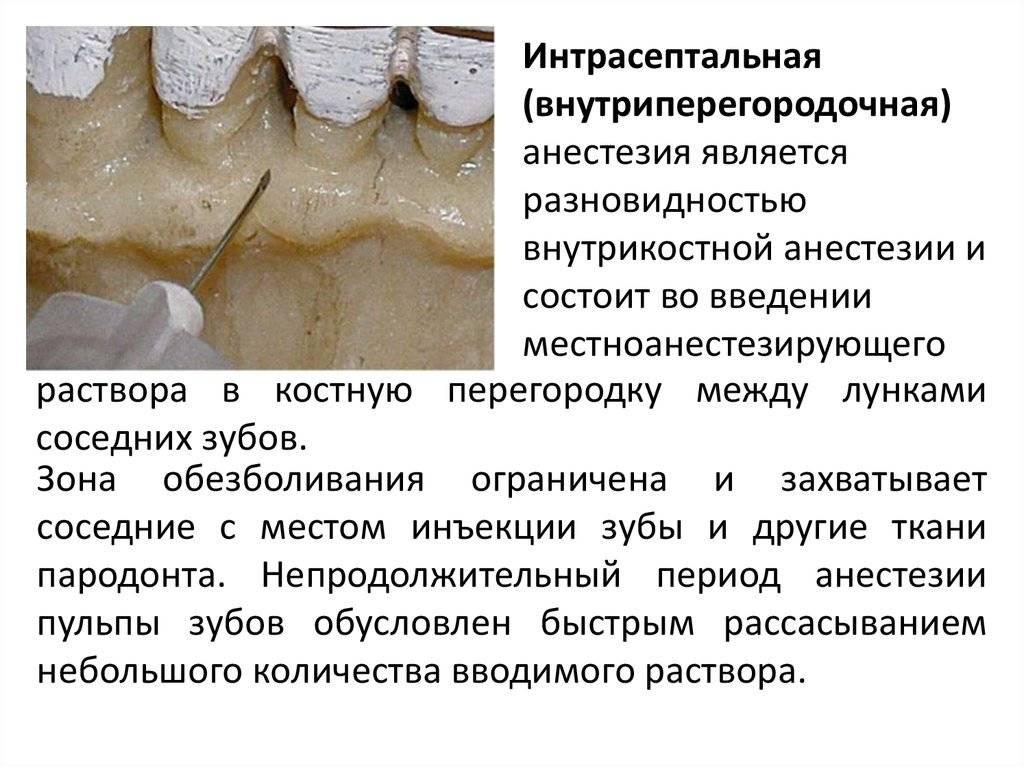 Сколько отходит анестезия зуба