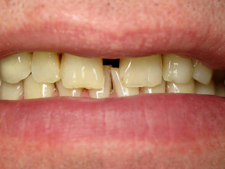 Как спасти зубы при их повышенной стираемости?