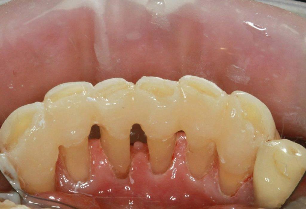 Протезирование зубов при пародонтозе – задача непростая!