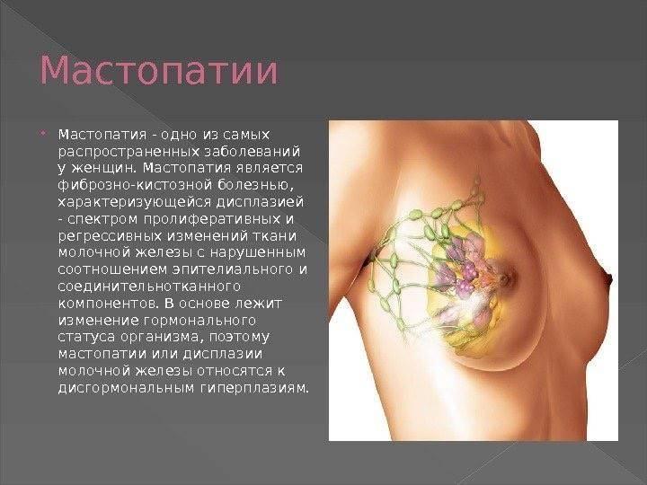 Болезнь педжета молочной железы: причины, симптомы, методы диагностики и лечения