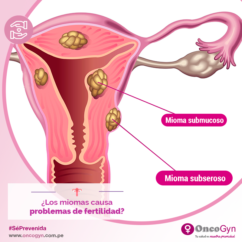 Какой диеты придерживаться при миоме матки?