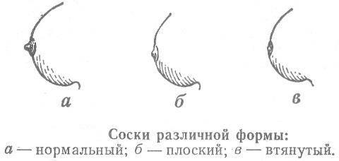 Операция по коррекции втянутых сосков: показания и противопоказания, техника изменения формы соска, отзывы