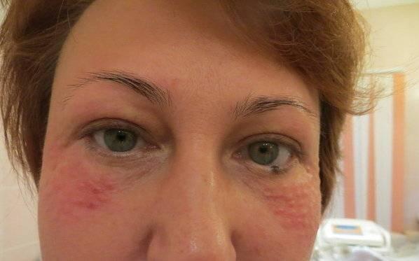 Красное лицо у женщины: причины