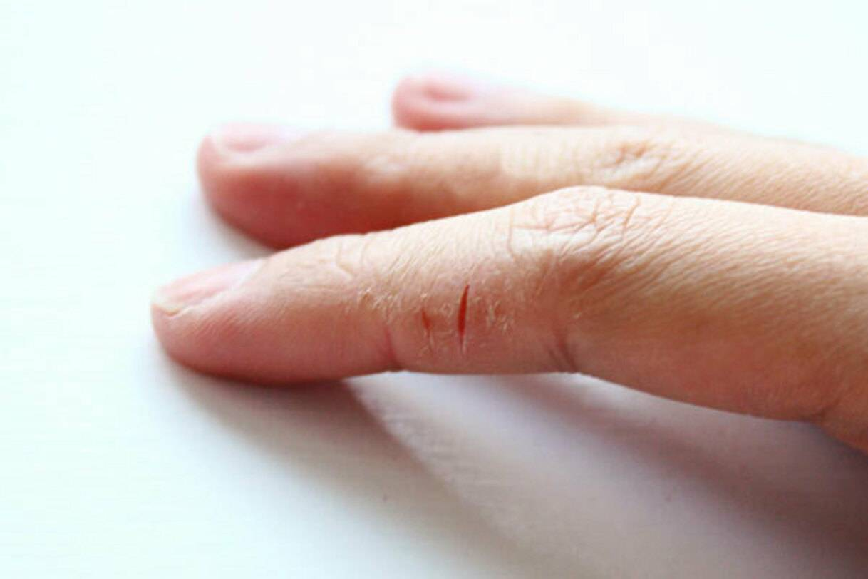 Сухая кожа рук и ног причины и лечение