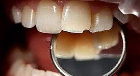 «зубастые» приметы: народные поверья, связанные с зубами
