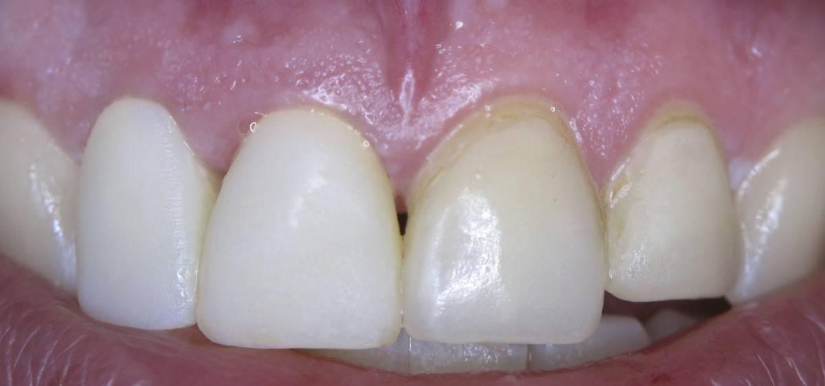 Основные причины появления оранжевого налета на зубах у взрослого и ребенка. методы лечения