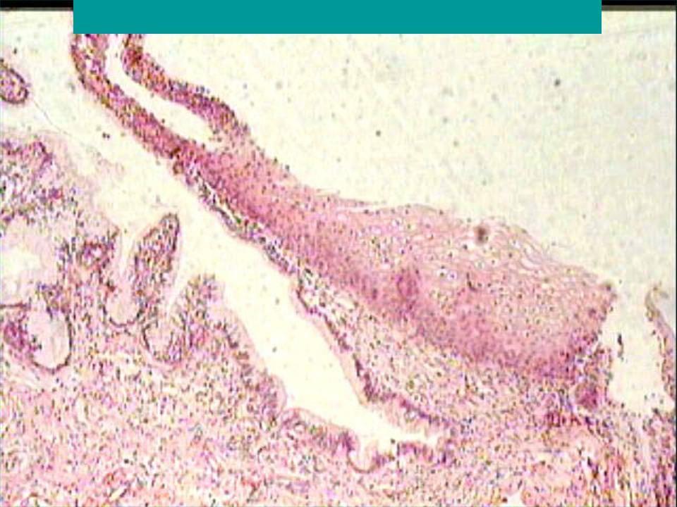 Эктопия шейки матки: симптомы, причины, диагностика и лечение