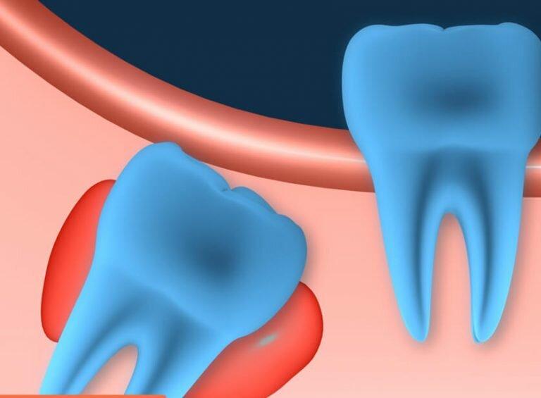 Киста на корне зуба: лечение или удаление без последствий