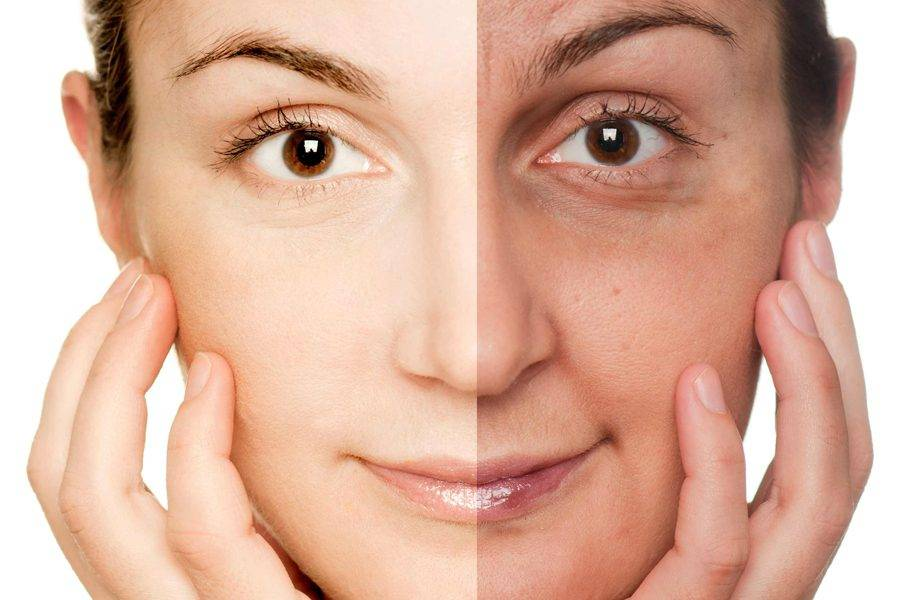 Фотостарение кожи — причины и лечение
