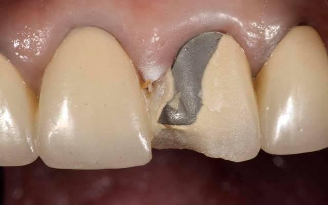 Сломался зуб примета