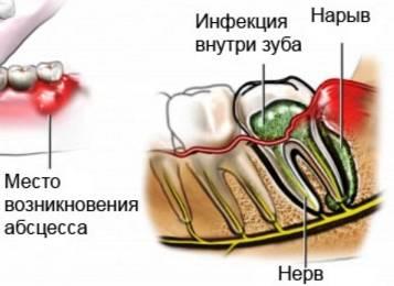 Пародонтальный и периодонтальный абсцессы: лечение в стоматологии и в домашних условиях