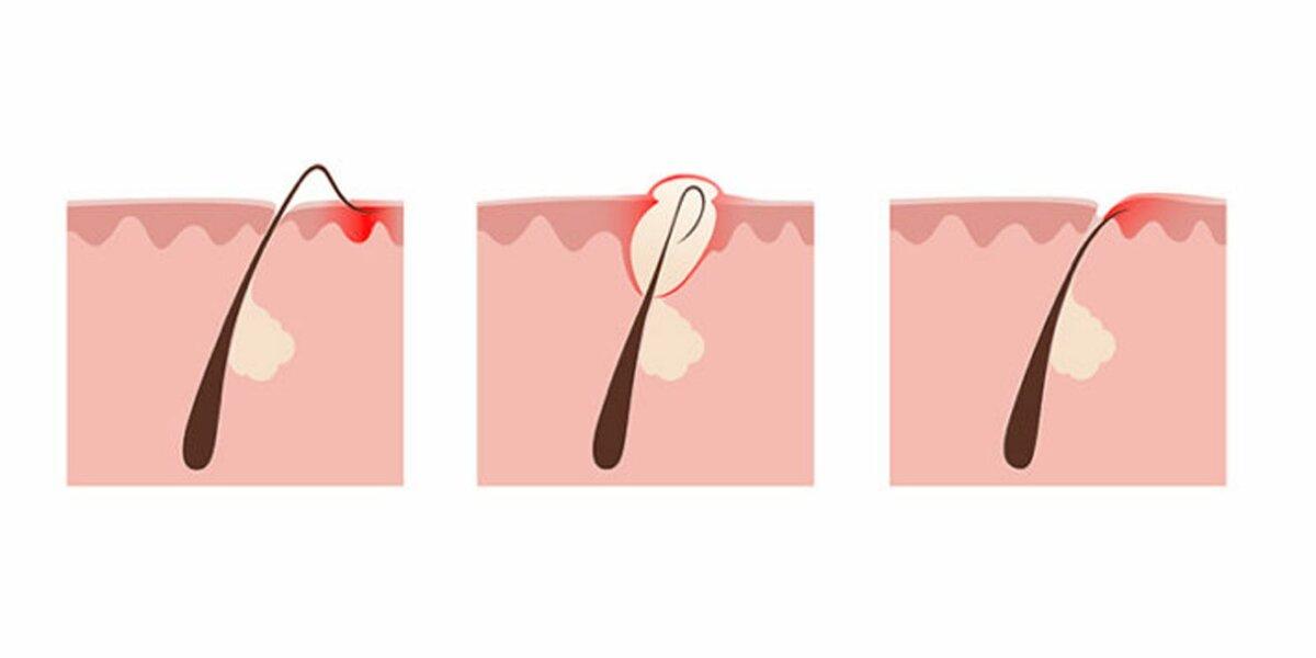 Вросшие волосы после депиляции – как от них избавиться