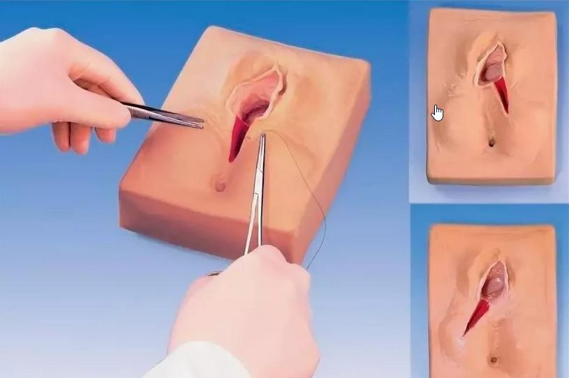 Лабиопластика: о чем нужно знать перед коррекцией половых губ