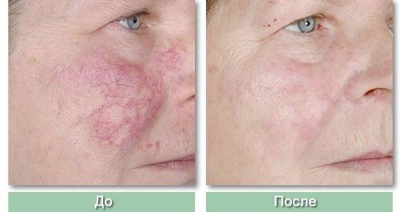 Купероз на лице — лечение в домашних условиях