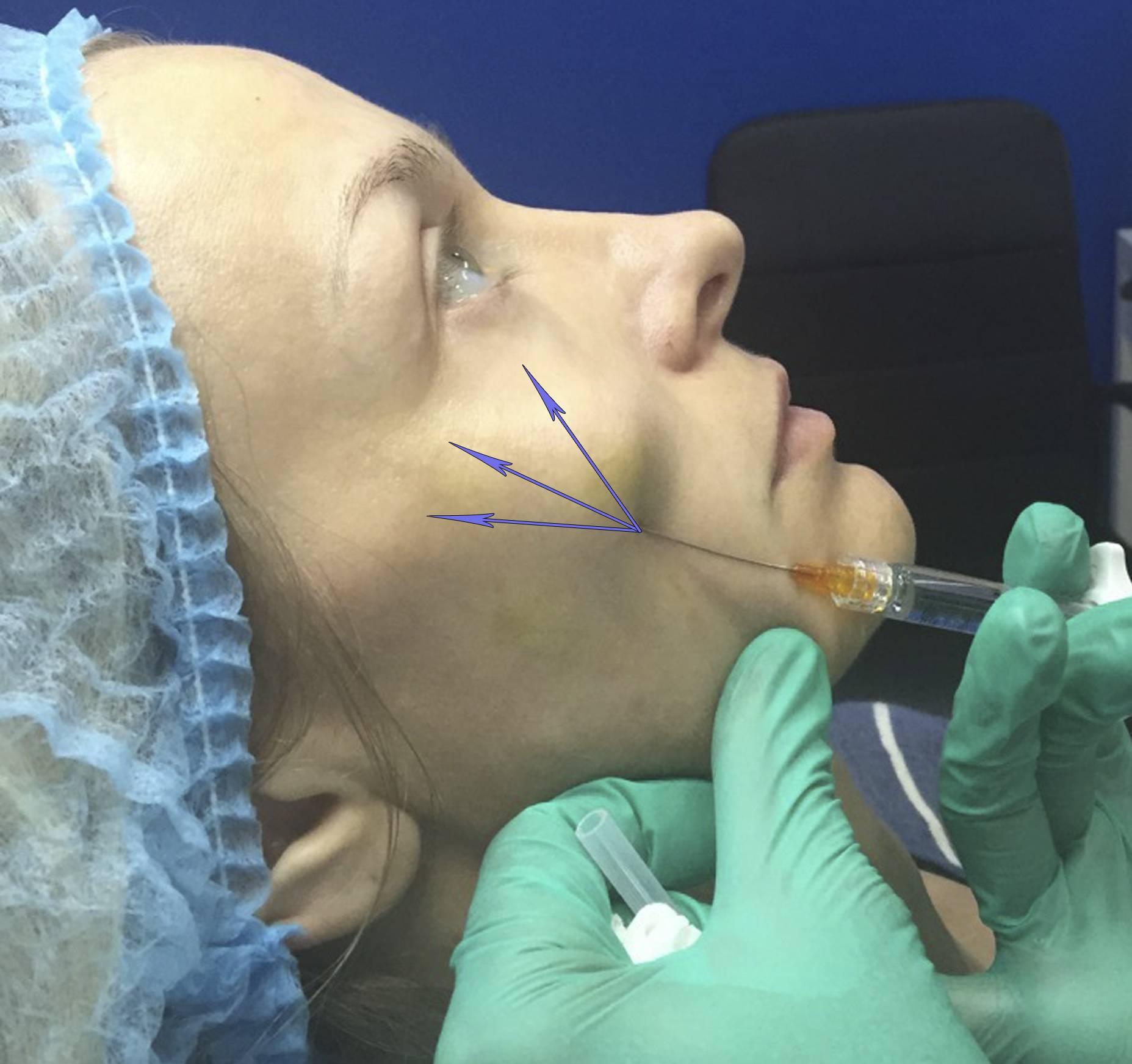 Ботулинотерапия периоральной области (часть 2)
